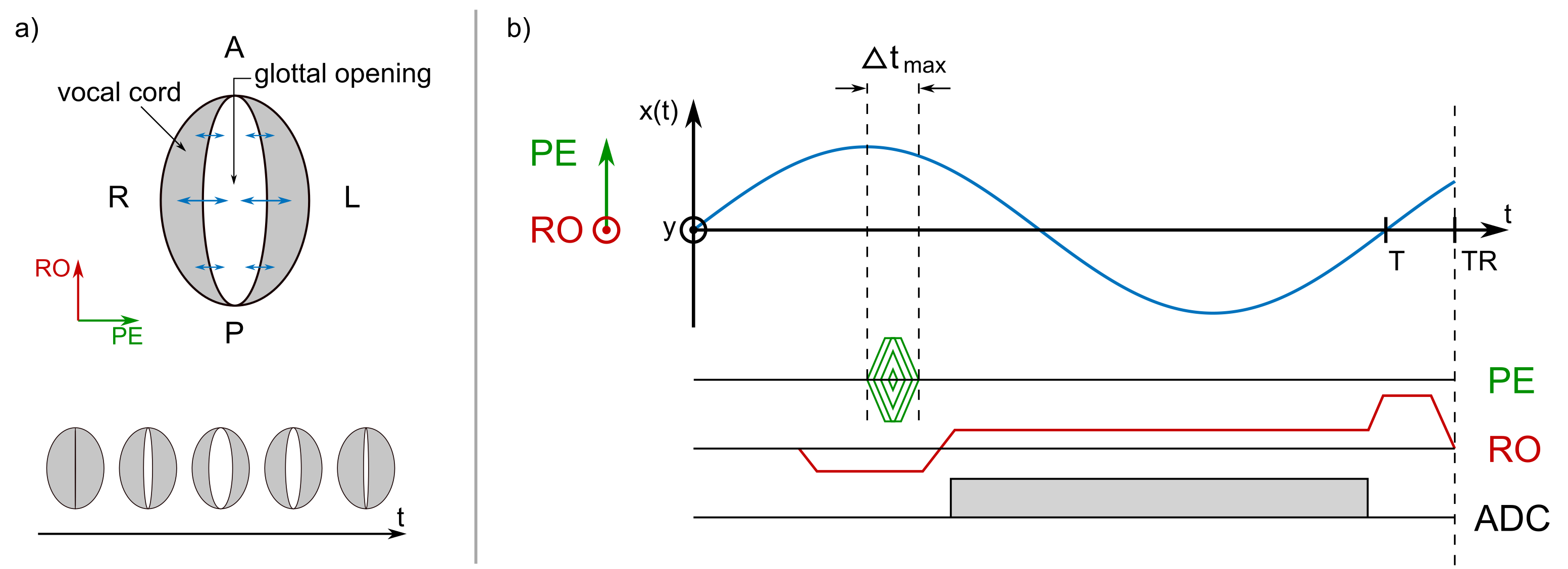 0383 highspeed imaging with sub millisecond temporal resolution of the vocal folds oscillations using egg gated gradient echo with rapid phase encoding johannes fischer1 timo abels1 ali caglar ozen1 2 matthias echternach3 bernhard richter